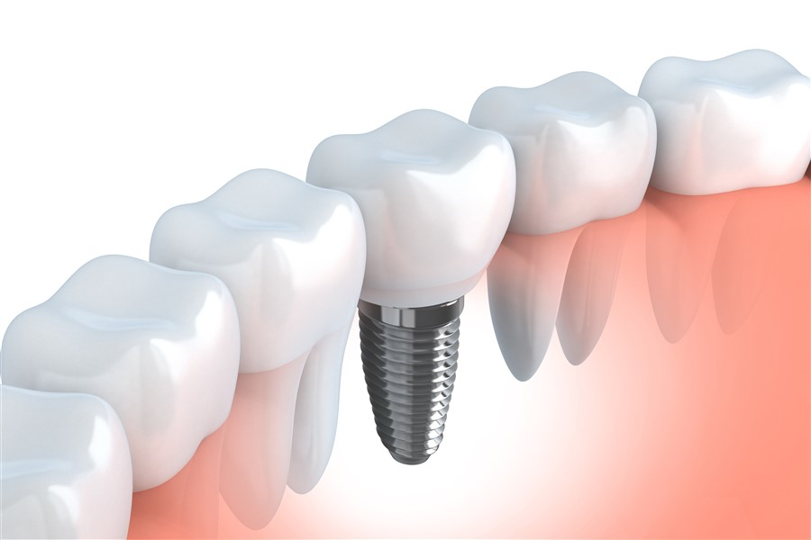 Dental Implants Devon